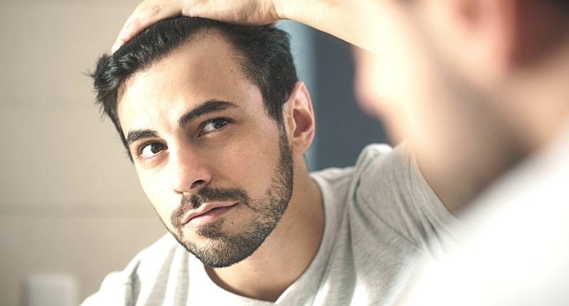 hair loss in men ageing